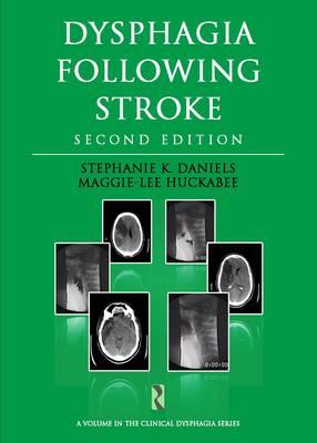 9781597565448-Dysphagia-Following-Stroke